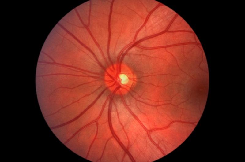 Glaucoma Spartanburg, SC